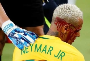 Neymar bloodied and battered as he